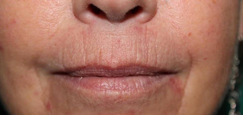 Example of DERMAPRO lip wrinkle treatment