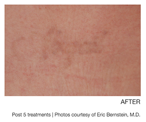 Image of tattoo removal for a name using picoway laser technology offered at Brilliant Bodywork