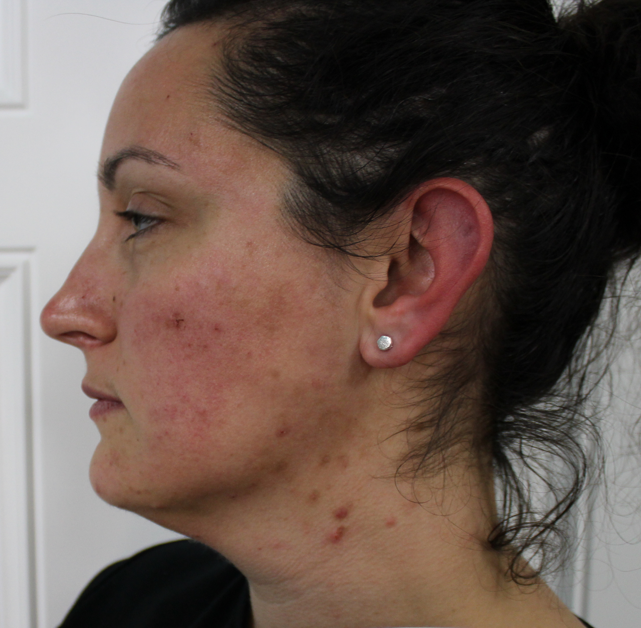 Before and After Images of Acne Treatment Patient at Brilliant Bodywork