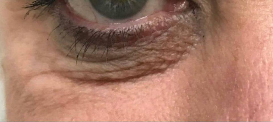 Example of DERMAPRO under eye tightening