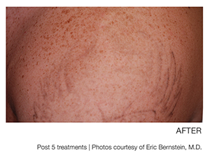 Image of before and after tattoo removal for a large tattoo with a great deal of ink.
