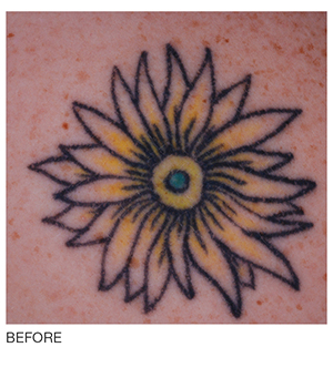 Image of tattoo removal using picoway laser technology offered at Brilliant Bodywork